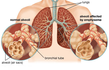 Study shows treatment for genetically caused emphysema is effective